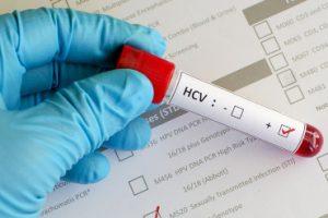 Blood sample with hepatitis C virus (HCV) positive